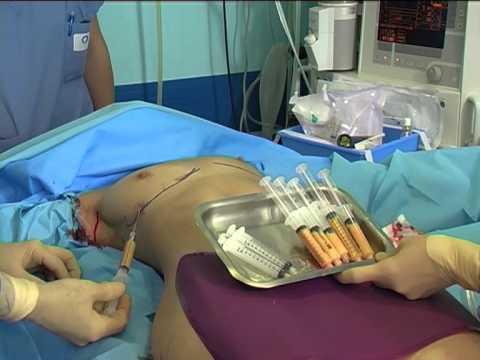 lipofilling-mammaire