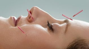 acupuncture-visage