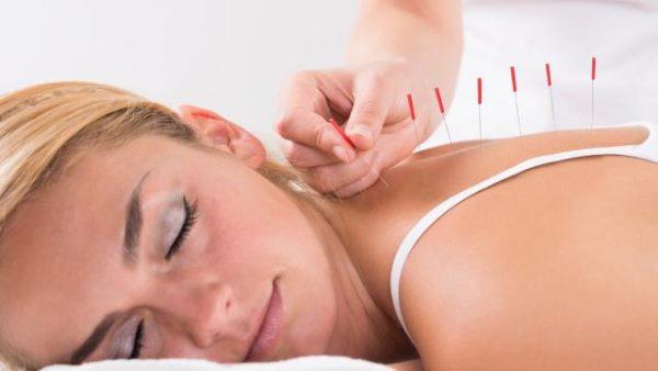 bienfaits-acupuncture 1